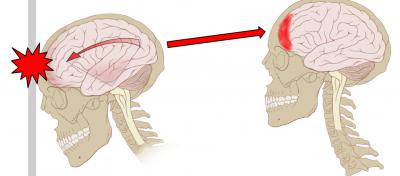 Concussion_Anatomy