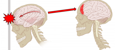 Concussion_Anatomy